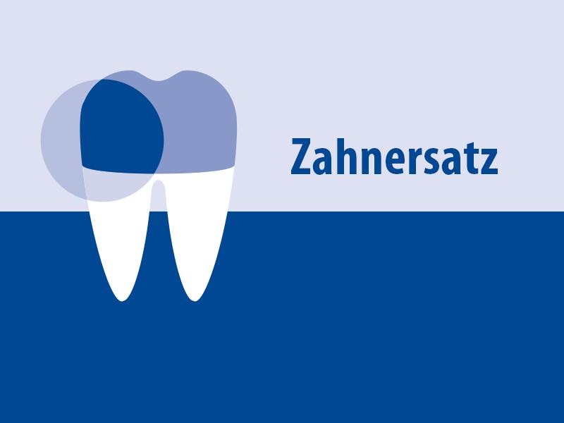 Postendodontischer Aufbau von Zähnen in der festsitzenden Prothetik