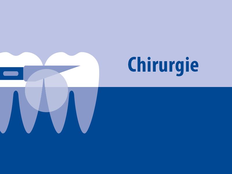 Strukturierte Fortbildung: Zahnärztliche Chirurgie