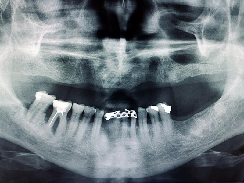 Aktualisierung der Fachkunde im Strahlenschutz § 48 StrlSchV für Zahnärzte und Zahnärztinnen